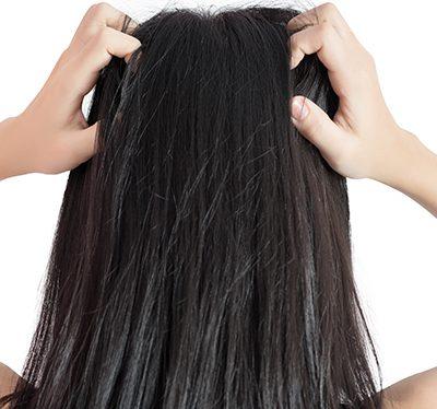 swędzenie skóry głowy i nadmierne wypadanie włosów